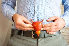La prostate peut être le siège d'affections telle que la prostatite chronique non infectieuse.