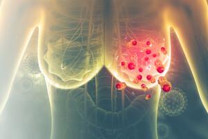 Une étude a évalué l'efficacité et l'innocuité de la curcumine en intraveineuse pour traiter le cancer du sein.