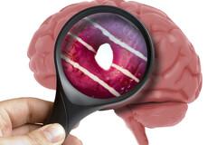 Impact soupçonné du sucre sur le cerveau