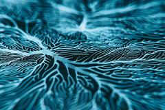 La sclérose en plaques (SEP), maladie aux causes encore floues.