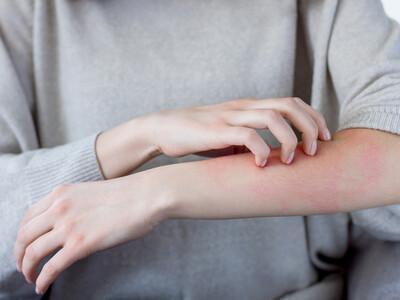 Le recours aux crèmes à la cortisone est un vrai problème