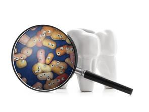 La parodontite est causée par une infection bactérienne.