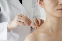 En France, la loi ne reconnais que l'acupuncture médicale.