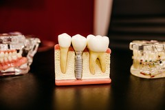 Les débris métalliques libérés par les implants entraînent un risque de mort cellulaire pour les tissus environnants.
