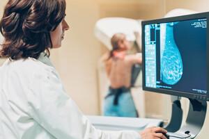 Mammographie 3D :