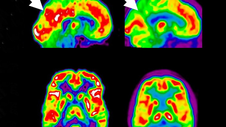 Diagnostic-alzheimer - alternativesante.fr