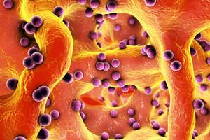 Bactéries ayant colonisé le tissu osseux
