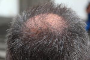 Effets secondaires du Propecia et réponses naturelles contre l'alopécie.