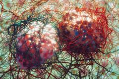 L'inflammation encourage l'irrigation accrue des cellules cancéreuse