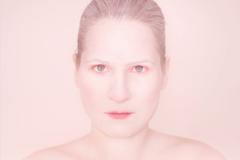 La paleur du visage, signe distinctif de l'anémie.