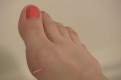 Nathalie Lefèvre a testé l'acupuncture