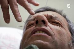 Michel Cymes teste l'acupuncture... sans en dire du mal