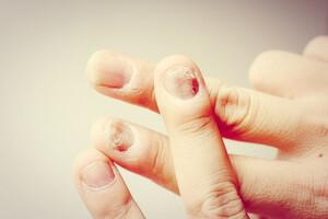 Comment lire dans les ongles ? Décrypter les signaux d'alerte de votre corps (épisode 2)