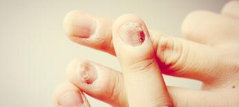 Comment lire dans les ongles ? Décrypter les signaux d'alerte de votre corps (épisode 2)  - Alternative Santé