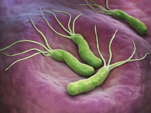 Bactéries Helicobacter pylori sur la paroi de l'estomac