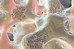 La densité minérale osseuse est le facteur le plus déterminant du risque de fracture.