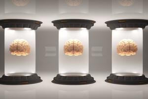 Trois causes à la maladie, donc trois types d'Alzheimer (IV)
