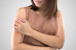 Les symptômes reviennent souvent dans les jours, les semaines ou les mois qui suivent l'arrêt du traitement.