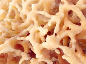 Ostéoporose: redensifier les os naturellement