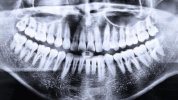Les liens entre sphère bucco-dentaire et autres pathologies sont extrêmement nombreux.