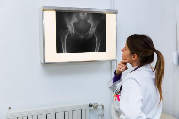 spondylarthrite : un diagnostic urgent, mais difficile (3)