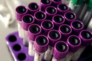 Le diagnostic sanguin actuel de Lyme n'est pas fiable