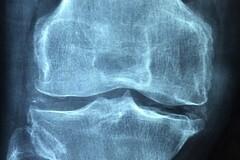 Vitamine K2 et ostéoporose : du calcium, mais pas n'importe où !