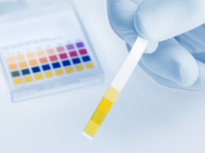 Il est possible d'acheter du papier pH en pharmacie pour tester son pH urinaire.