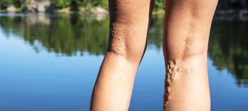 Retour veineux et phytothérapie - Alternative Santé