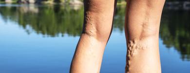 La stagnation du sang dans les jambes, cause de varices