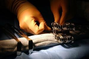 Kystes sébacés : on peut éviter la chirurgie