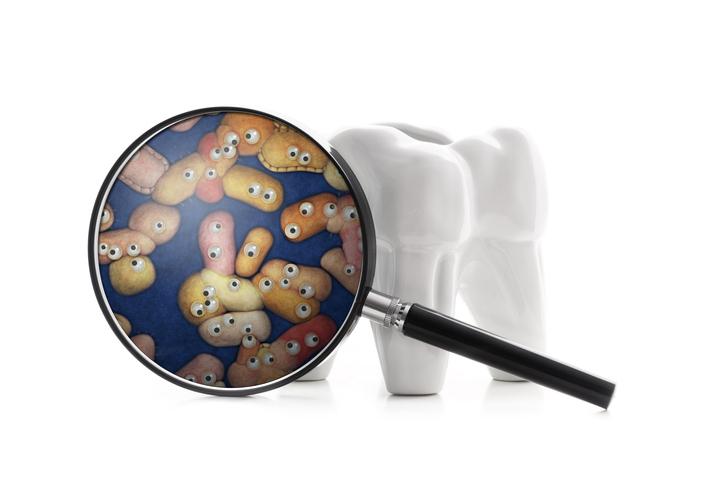 Parodontite: miser sur l'alimentation antioxydante