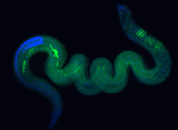 Les parasites intestinaux : ennemis ou alliés ?